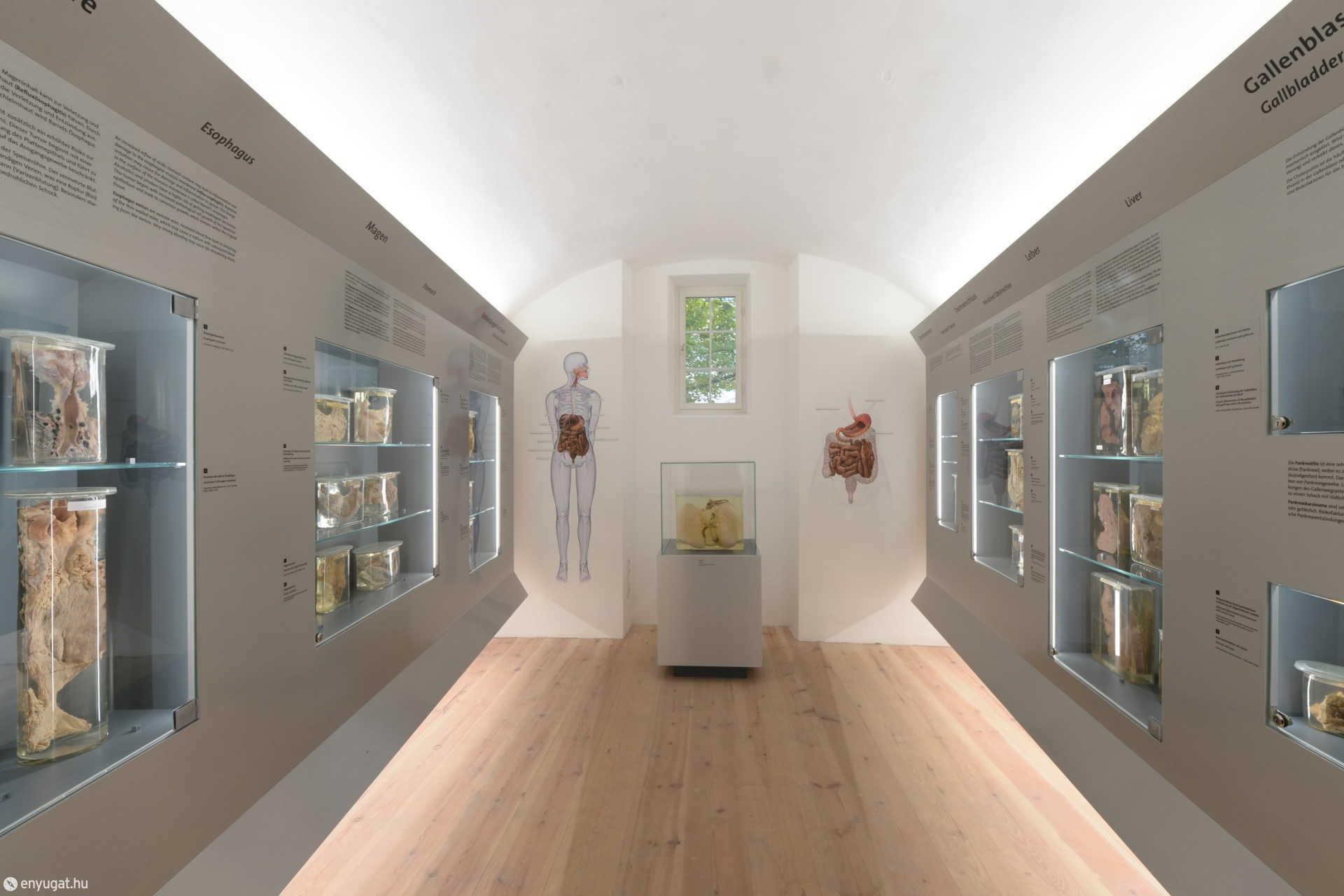 A Patológiai-anatómiai Múzeum egyik terme a bécsi Narrenturmban.